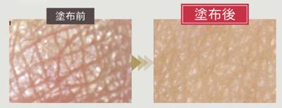 Tsuru肌 (ツル肌)の毛穴カバーの画像