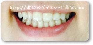 ちゅらトゥースで磨いた歯の写真