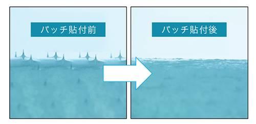 iマイクロパッチのパッチのビフォーアフター画像